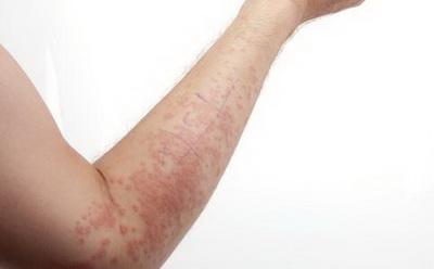患上荨麻疹如何治疗呢