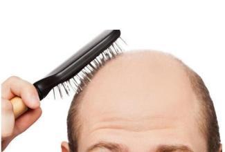 是什么原因导致脱发