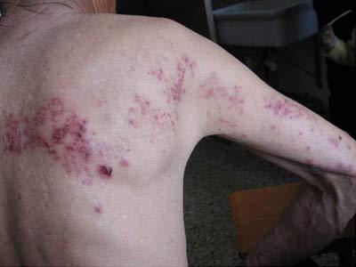海口治疗带状疱疹的医院