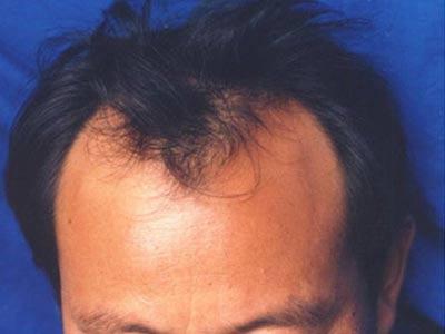 脱发都有哪些症状呢